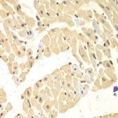 Anti-HIF1AN antibody used in IHC (Paraffin sections) (IHC-P). GTX32652