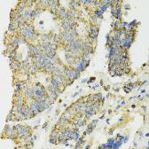 Anti-IDH2 antibody used in IHC (Paraffin sections) (IHC-P). GTX32666