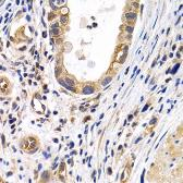 Anti-Prostaglandin I2 receptor antibody used in IHC (Paraffin sections) (IHC-P). GTX32683