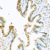 Anti-KCTD15 antibody used in IHC (Paraffin sections) (IHC-P). GTX32690