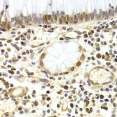 Anti-MCM4 antibody used in IHC (Paraffin sections) (IHC-P). GTX32717