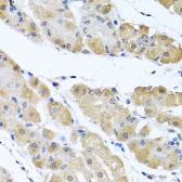 Anti-Zeta Opioid Receptor antibody used in IHC (Paraffin sections) (IHC-P). GTX32765