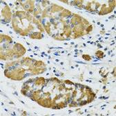 Anti-PLA2G2D antibody used in IHC (Paraffin sections) (IHC-P). GTX32792