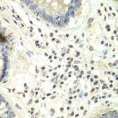 Anti-PRMT5 antibody used in IHC (Paraffin sections) (IHC-P). GTX32810