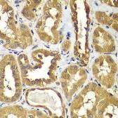 Anti-RAB1B antibody used in IHC (Paraffin sections) (IHC-P). GTX32825