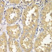 Anti-RAB5C antibody used in IHC (Paraffin sections) (IHC-P). GTX32828