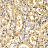 Anti-ADH4 antibody used in IHC (Paraffin sections) (IHC-P). GTX32994