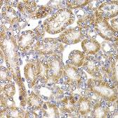 Anti-APC5 antibody used in IHC (Paraffin sections) (IHC-P). GTX33008