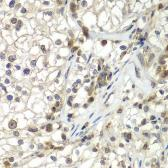 Anti-TUG antibody used in IHC (Paraffin sections) (IHC-P). GTX33023