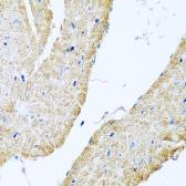 Anti-COX6B1 antibody used in IHC (Paraffin sections) (IHC-P). GTX33115