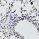 Anti-DDX1 antibody used in IHC (Paraffin sections) (IHC-P). GTX33149