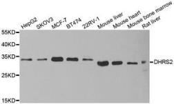 Anti-DHRS2 antibody used in Western Blot (WB). GTX33152