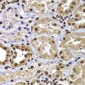 Anti-DNAJB6 antibody used in IHC (Paraffin sections) (IHC-P). GTX33160
