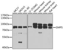 Anti-GMP synthase antibody used in Western Blot (WB). GTX33223