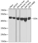 Anti-Guanine deaminase antibody used in Western Blot (WB). GTX33233