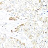 Anti-ERAB antibody used in IHC (Paraffin sections) (IHC-P). GTX33249