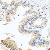 Anti-MCCC2 antibody used in IHC (Paraffin sections) (IHC-P). GTX33308