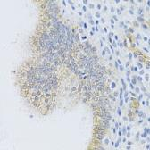 Anti-MRP1 antibody used in IHC (Paraffin sections) (IHC-P). GTX33323
