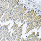 Anti-NDUFB10 antibody used in IHC (Paraffin sections) (IHC-P). GTX33350
