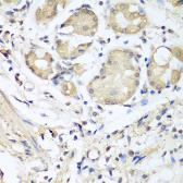 Anti-Nidogen 1 antibody used in IHC (Paraffin sections) (IHC-P). GTX33357