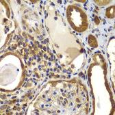 Anti-nm23-H2 antibody used in IHC (Paraffin sections) (IHC-P). GTX33360