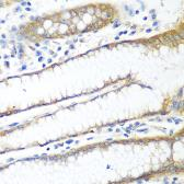 Anti-PPP4R1 antibody used in IHC (Paraffin sections) (IHC-P). GTX33426