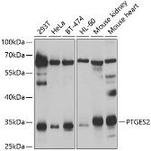 Anti-PTGES2 antibody used in Western Blot (WB). GTX33444