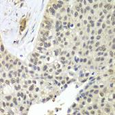 Anti-SNRPD2 antibody used in IHC (Paraffin sections) (IHC-P). GTX33510
