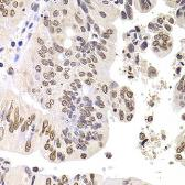 Anti-SOX5 antibody used in IHC (Paraffin sections) (IHC-P). GTX33514