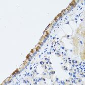 Anti-ST3GAL3 antibody used in IHC (Paraffin sections) (IHC-P). GTX33520