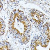 Anti-TRAP1 antibody used in IHC (Paraffin sections) (IHC-P). GTX33558