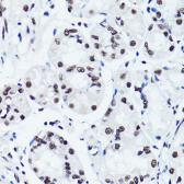 Anti-Histone H3R2me2 (Symmetric Di-methyl Arg2) antibody used in IHC (Paraffin sections) (IHC-P). GTX33905