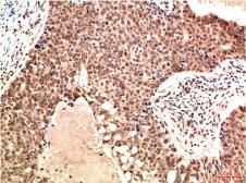 Anti-ATM antibody [4G9] used in IHC (Paraffin sections) (IHC-P). GTX34047