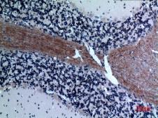 Anti-Eotaxin 3 antibody used in IHC (Paraffin sections) (IHC-P). GTX34186