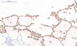 Anti-Desmin antibody [1B12] used in IHC (Paraffin sections) (IHC-P). GTX34350