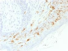 Anti-CD1a antibody [C1A/1506R] used in IHC (Paraffin sections) (IHC-P). GTX34472