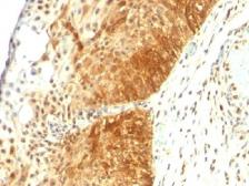 Anti-Cytokeratin 14 antibody [LL002] used in IHC (Paraffin sections) (IHC-P). GTX34631