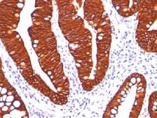 Anti-Cytokeratin 19 antibody [A53-B/A2.26] used in IHC (Paraffin sections) (IHC-P). GTX34653