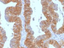 Anti-EpCAM antibody [EGP40/1384] used in IHC (Paraffin sections) (IHC-P). GTX34696
