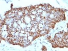 Anti-Estrogen Receptor beta antibody [ERb455] used in IHC (Paraffin sections) (IHC-P). GTX34711