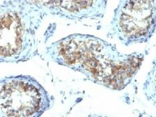 Anti-Interferon gamma antibody [IFNG/466] used in IHC (Paraffin sections) (IHC-P). GTX34794