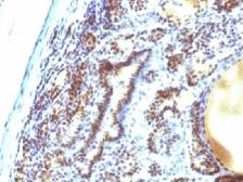 Anti-MAP3K1 antibody [2F6] used in IHC (Paraffin sections) (IHC-P). GTX34816