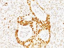 Anti-p53 antibody [TRP/817] used in IHC (Paraffin sections) (IHC-P). GTX34935