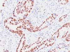 Anti-Rb antibody [SPM353] used in IHC (Paraffin sections) (IHC-P). GTX34994