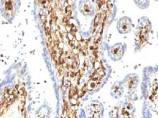 Anti-S100A4 antibody [S100A4/1482] used in IHC (Paraffin sections) (IHC-P). GTX35000