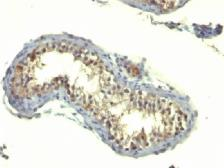 Anti-TGF alpha antibody [TG86] used in IHC (Paraffin sections) (IHC-P). GTX35105