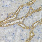 Anti-PFKP antibody used in IHC (Paraffin sections) (IHC-P). GTX35238