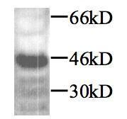 Anti-TGF beta 1 antibody used in Western Blot (WB). GTX45121