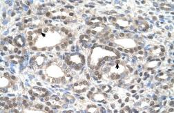 Anti-DFNA5 antibody, C-term used in IHC (Paraffin sections) (IHC-P). GTX46489