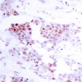 Anti-MEF2A antibody used in IHC (Paraffin sections) (IHC-P). GTX50398